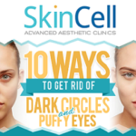 10 Ways to Get Rid of Dark Circles and Puffy Eyes