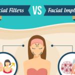 Facial Fillers vs. Facial Implants