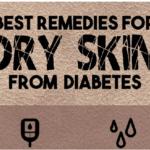 Best Remedies  for Diabetes Dry Skin
