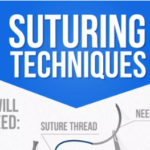 Suturing Techniques – Guide (Infographic)